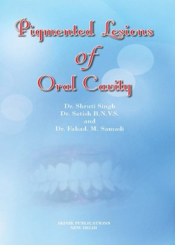 Pigmented lesions of oral cavity