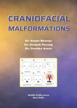 Craniofacial Malformations