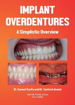 Implant Overdentures: A Simplistic Overview