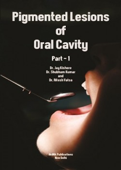 Pigmented Lesions of Oral Cavity (Part - 1)