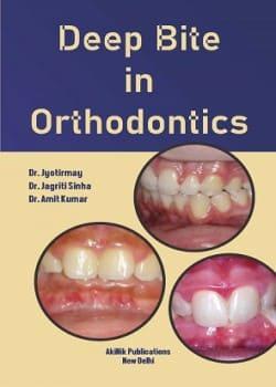 Deep Bite in Orthodontics