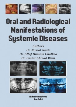Oral and Radiological Manifestations of Systemic Diseases
