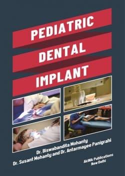 Pediatric Dental Implant