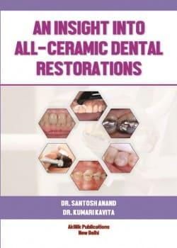 An insight into All-Ceramic Dental Restorations