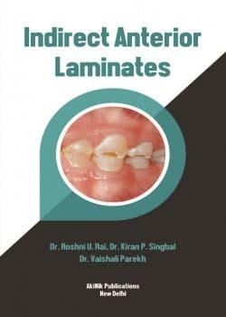 Indirect Anterior Laminates