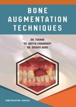 Bone Augmentation Techniques