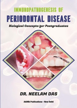 Immunopathogenesis of Periodontal Disease: Biological Concepts for Postgraduates