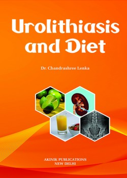 Urolithiasis and Diet