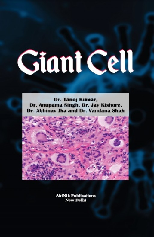 Giant Cell