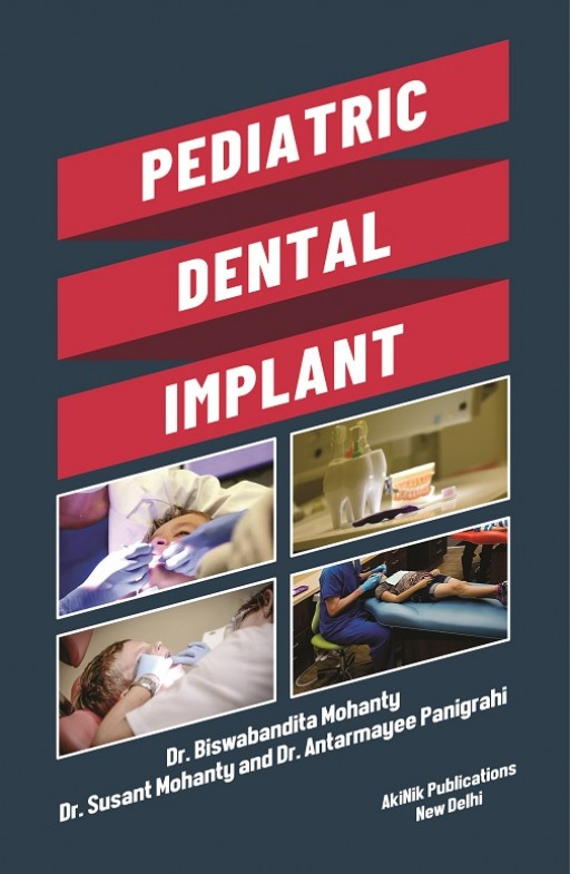 Pediatric Dental Implant