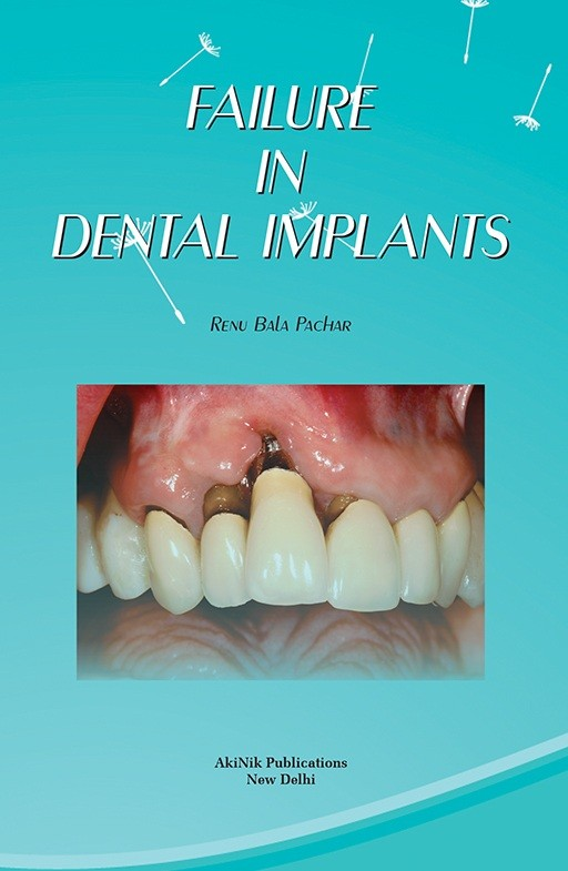 Failure in Dental Implants
