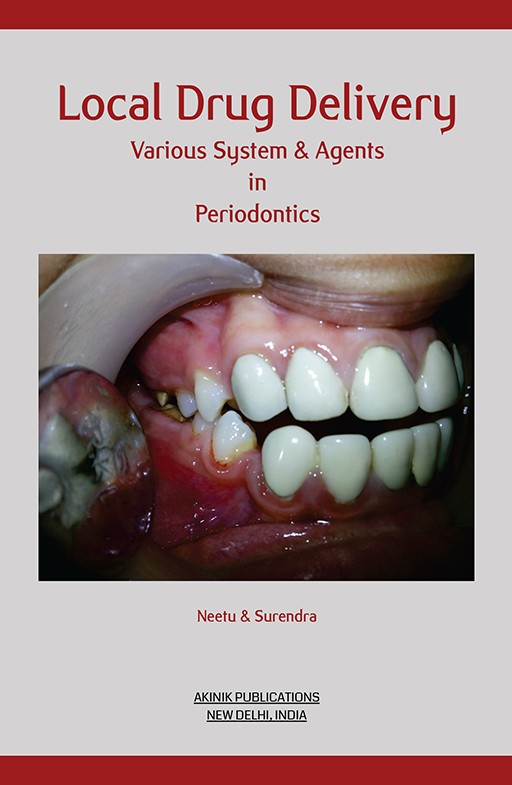 Local Drug Delivery Various System & Agents in Periodontics